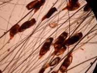 uova di parassiti sul pelo